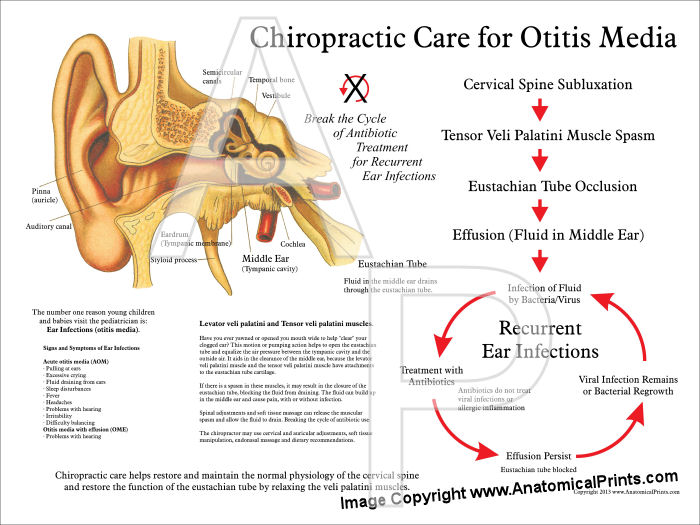 Chiropractic Care for Otitis Media Poster